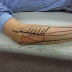 筋触察法(筋肉の触り分け)
