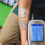 電気治療(MCR、TENS)